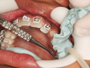 Transfer Of Brackets To Your Teeth